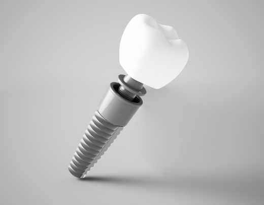 Animated dental implant components