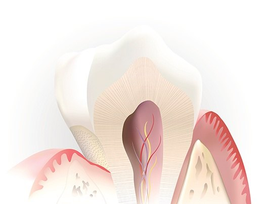 Animation of the inside of a healthy tooth after pulp therapy