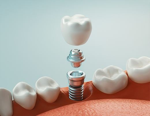Animation of dental implant placement